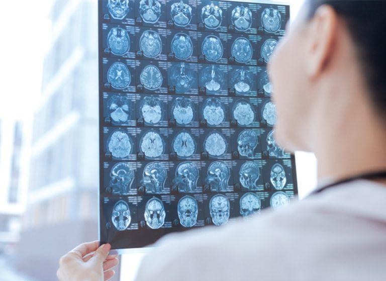 Tumor Otak , Kenali Sejak Dini Sebelum Terlambat